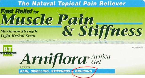 Best gel for the treatment of bruises