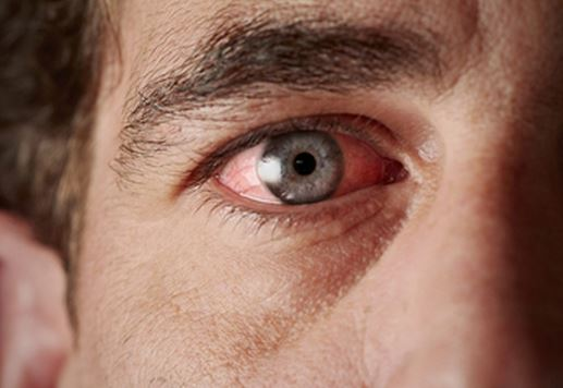 Is pink eye airborne and contagious