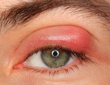 Swollen eyelid home remedies - you can get rid of swollen eyelid naturally at home