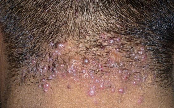 Pimple-like bumps on back of scalp of an adult