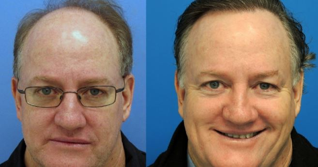 Saw palmetto hair loss before and after