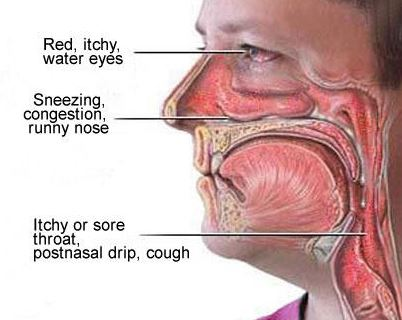 Postnasal drip and symptoms associated with the itchy throat irritation