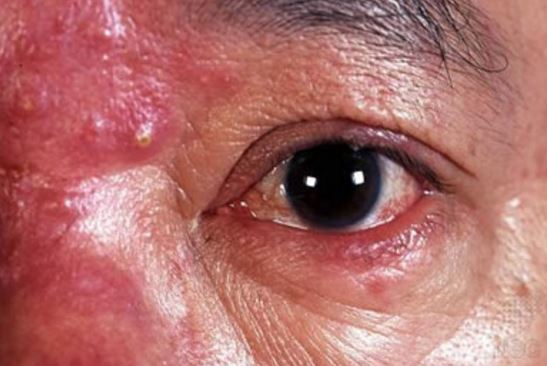 Ocular rosacea can cause pimple like bumps around the eye