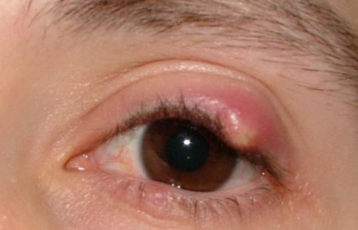White pimple on eyelid or upper eyelid