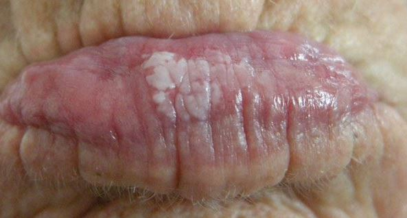 White patches on lips from leukoplakia