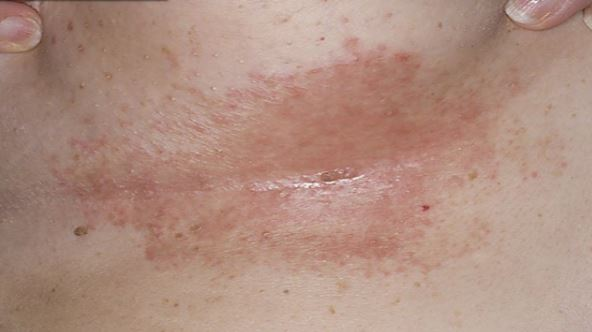Yeast infection under breast and how to get rid of breast rash