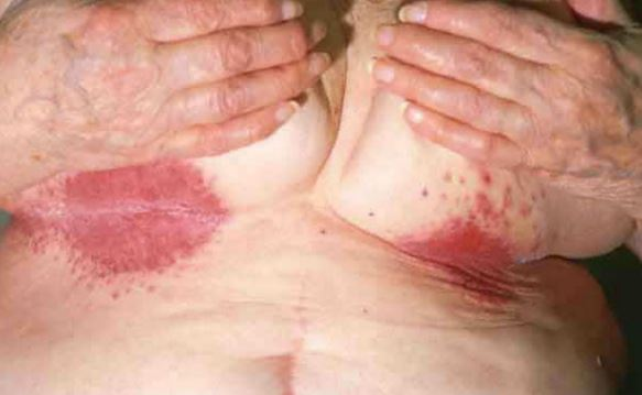 Yeast infection under the breast