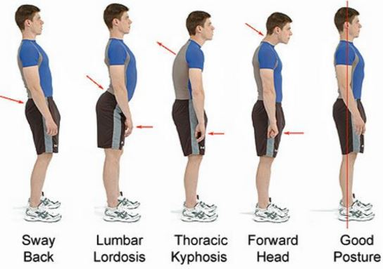 Poor posture can also cause shoulder pain
