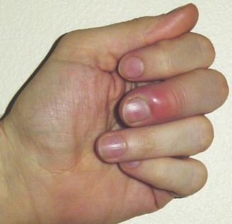 infected-thumb-swelling