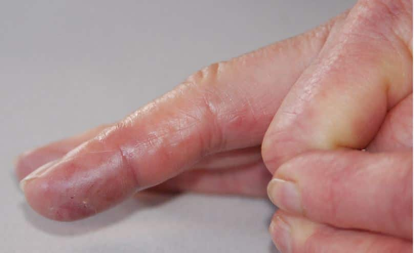 Small itchy bumps on fingers may be due to allergic reactions