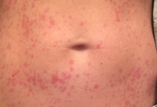 Rash on stomach red, itchy, lower, side of belly and back