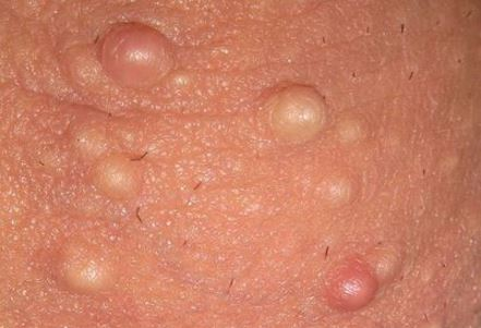 White bumps on scrotum