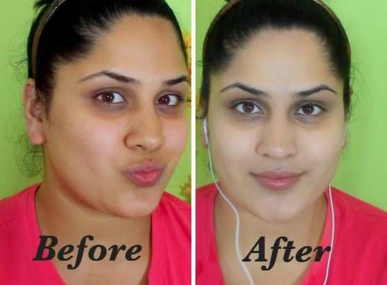 Before and after skin whitening