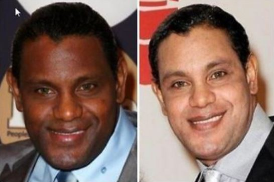 Male celebrities have also done laser skin lightening plastic surgery