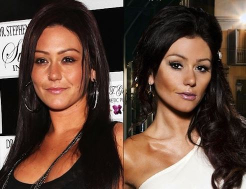 Skin lightening plastic surgery results before and after