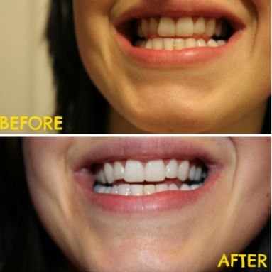 Before and after pictures turmeric teeth whitening