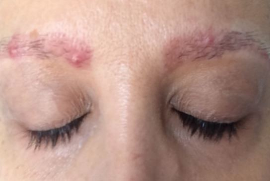 Pimples on eyebrows after threading or waxing