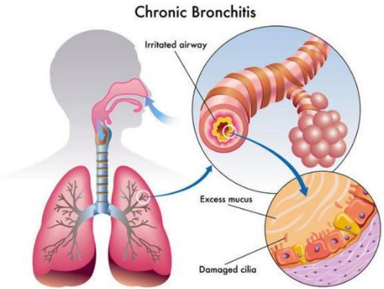 Chronic bronchitis could be the reason you are coughing up yellow mucus