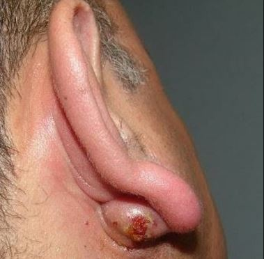 Infected cyst behind ear lobe