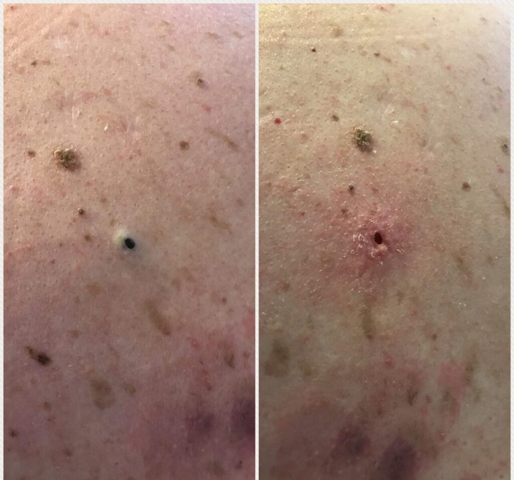 dilated pore of winer